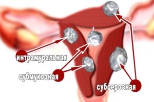 Дисфункциональное маточное кровотечение: симптомы и лечение