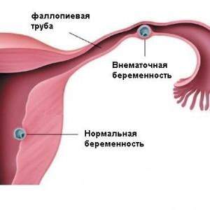 Маточная и внематочная беременность