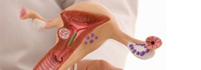 Кровоостанавливающие препараты и травы при маточном кровотечении